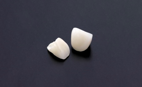 イメージ:白い歯を手に入れる